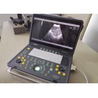 Portable Pregnancy Ultrasound Scanner with Abdominal Convex Transvaginal Transducers