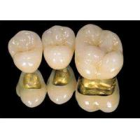 Cheap Yellow Gold Dental Implant Crown PFM Porcelain Fused To Metal Crown For Dental Clinic for sale